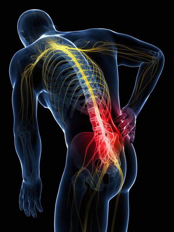 Ciática: ¿por qué nos duele? ¿Cómo quitar ese dolor..
